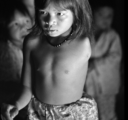 Quynh Lan, 11 years old, at her home in A Luoi. Her father was sprayed many times